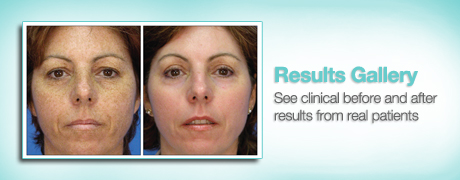 Sciton Resurfacing Results Gallery